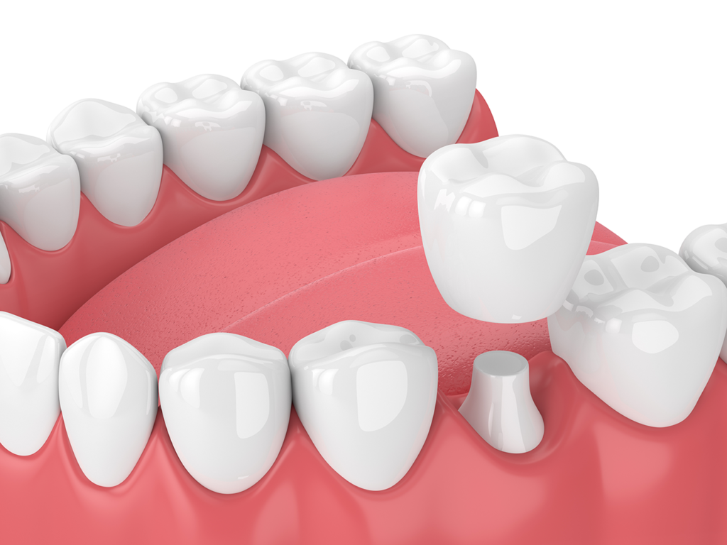 Picture of Dental Crowns
