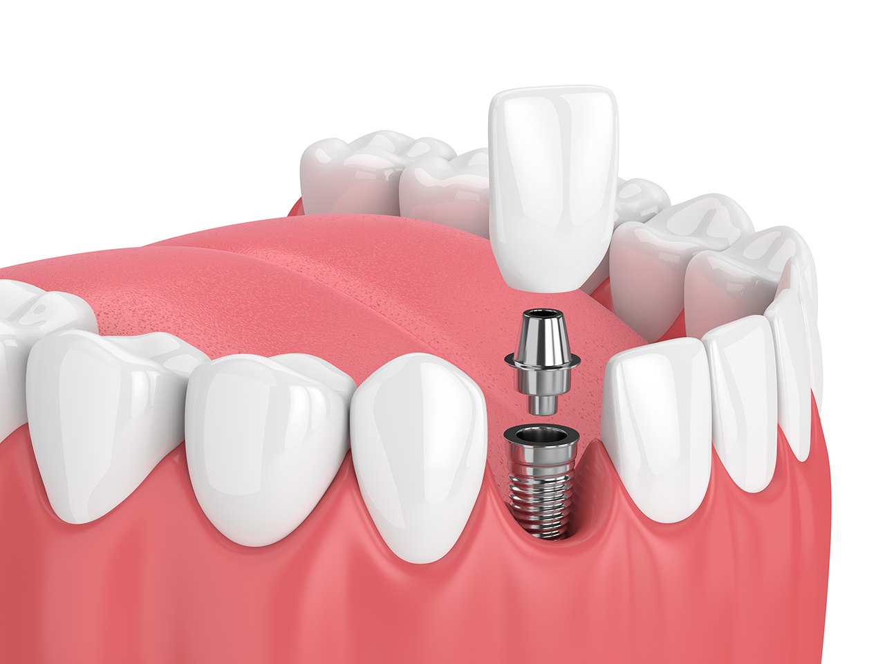 Picture of Dental Implant