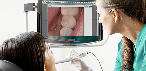 Picture of Intraoral Camera
