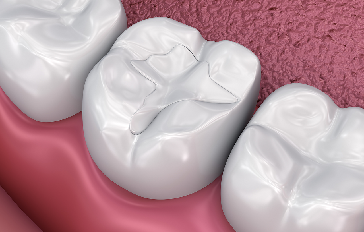 Picture of Tooth-colored fillings
